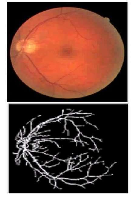 تصویر شبکیه ای و ارتقای رگ های خونی با استفاده از فیلتر های هدایت کردنی مبتنی بر تغییر شکل های موجک و نتیجه قطعه بندی