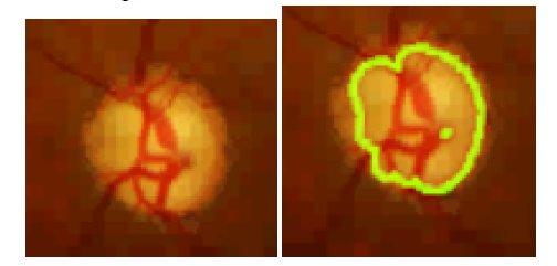 تصویر رنگی شبکیه ای و نمونه شکل حلقوی OD ، تصویر شبکیه ای و نمونه با شکل غیر منظم OD